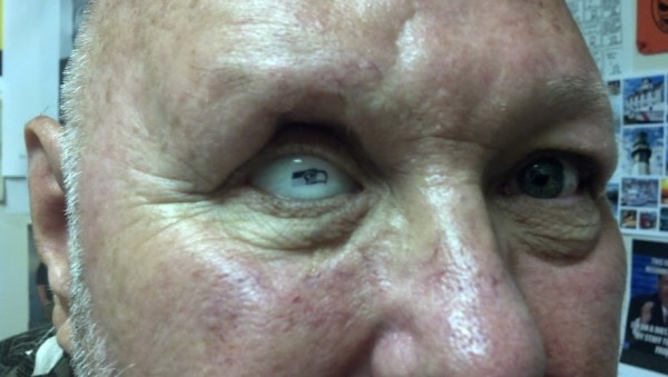 "Bill Vandenbush and his new ""favorite eye"""