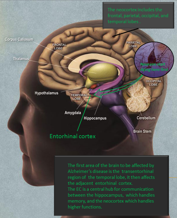 """""""Alzheimers entorhinal cortex"""" by 7mike5000 - Own work A derivative of an image created by the National Institute of Aging. http://www.nia.nih.gov/sites/default/files/nia-ad-image02_large.jpg. Licensed under CC BY-SA 3.0 via Wikimedia Commons"""
